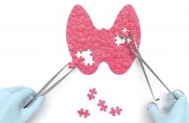 甲状腺癌基因检测价格