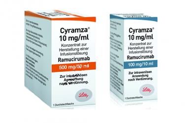 免费治疗|雷莫芦单抗治疗晚期胃或胃食管结合部腺癌患者临床试验