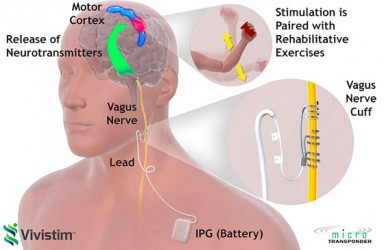 首款|Vivistim迷走神经刺激系统美国获批治疗缺血性中风相关手臂移动