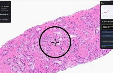 首款 PaigeProstate(AI前列腺癌诊断系统)美国获批
