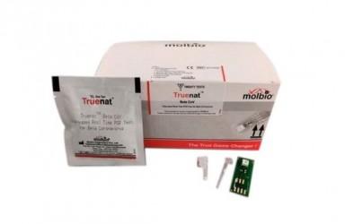 进展 Truenat印度获紧急使用授权检测尼帕病毒(NiV)